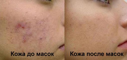Аспириновая маска - отзывы