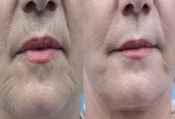ИК-лифтинг – эффективный инструмент для восстановления кожных покровов