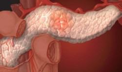 Заболевания поджелудочной железы: причины и симптомы