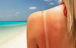 Лучшие природные средства для защиты от солнечных ожогов
